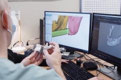 Le LARA 3D ouvre de nouvelles perspectives en reconstruction anatomique